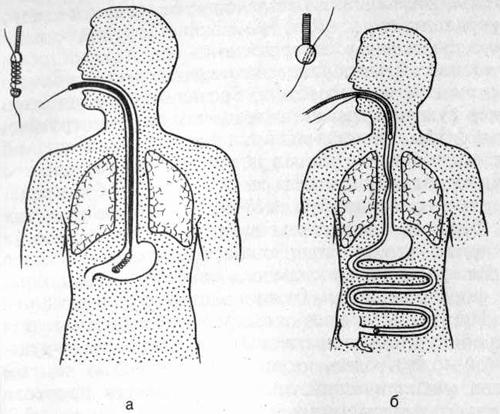 Ортоградное форсированное бужирование по металлической струне (а) и по нити-направителю (б)
