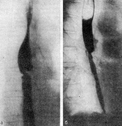 Рентгенограммы пищевода больного 40 лет