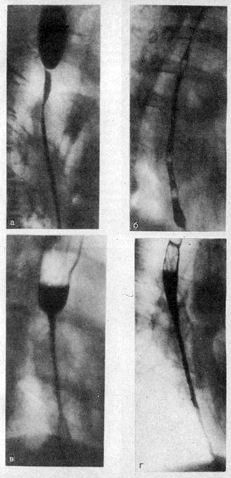 Рентгенологическая картина различных видов рубцовых стриктур пищевода