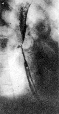 Рентгенограммы пищевода больной 46 лет после химического ожога уксусной эссенцией (а)