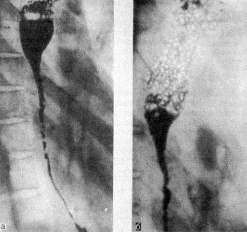 Выполнение рентгенограмм при ожогах пищевода
