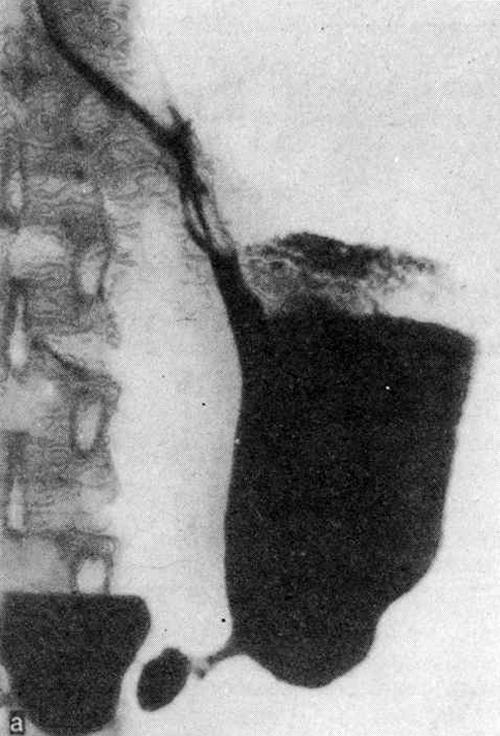 Рентгенограммы желудка больной 27 лет (а)