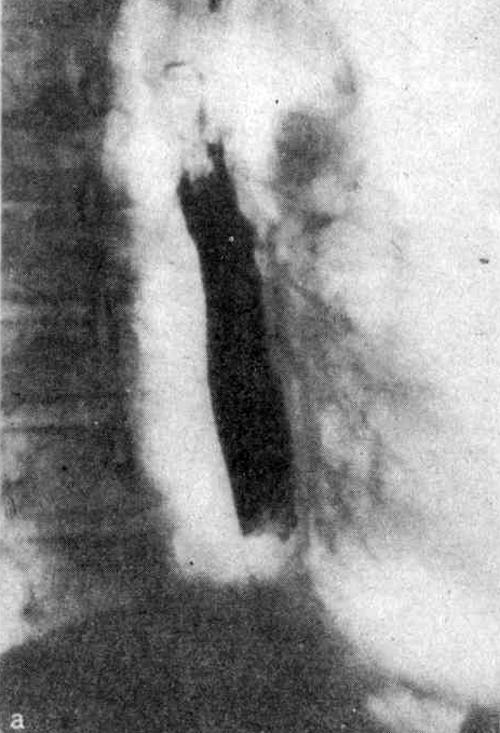 Рентгенограммы пищевода больного через 2 года после химического ожога уксусной эссенцией (а)