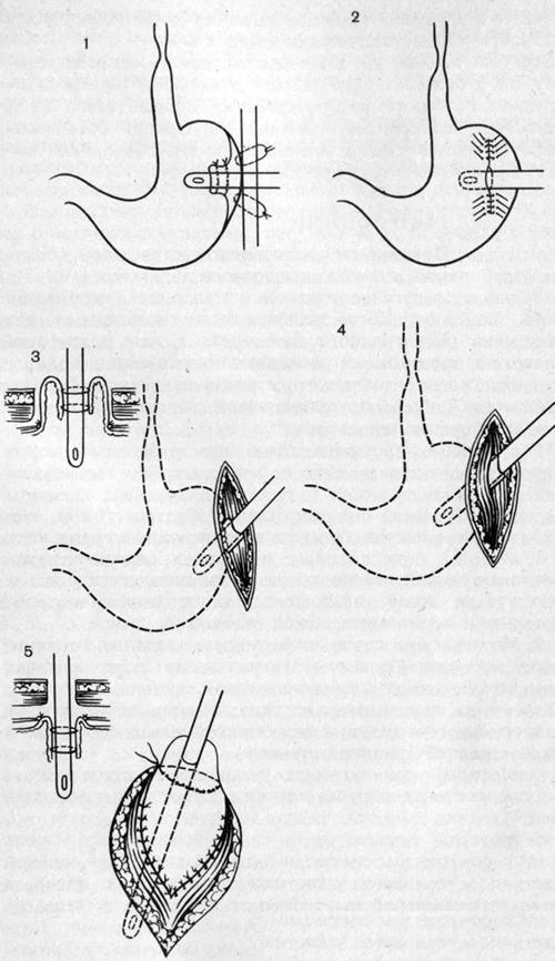 Методы гастростомии
