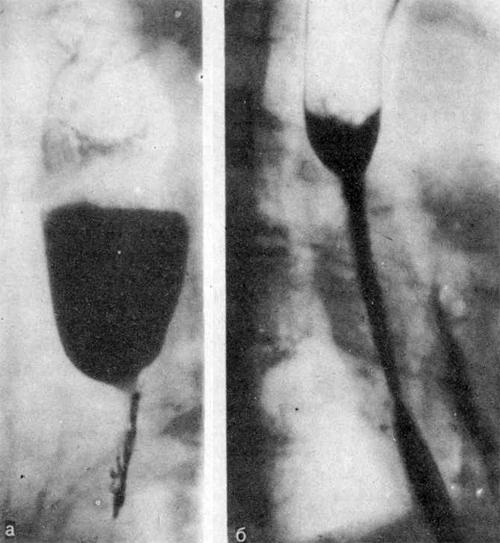 Рентгенограммы пищевода больного 47 лет через 4 лес после химического ожога аккумуляторной жидкостью