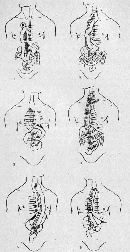 Варианты тонкокишечной эзофагопластики