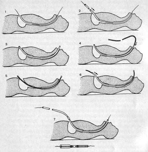 Техника накладывания швов при гастростомии для ретроградного бужирования