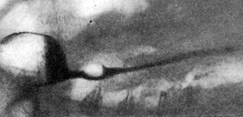 Рентгенограмма пищевода больной 48 лет через 30 лет после химического ожога каустической содой