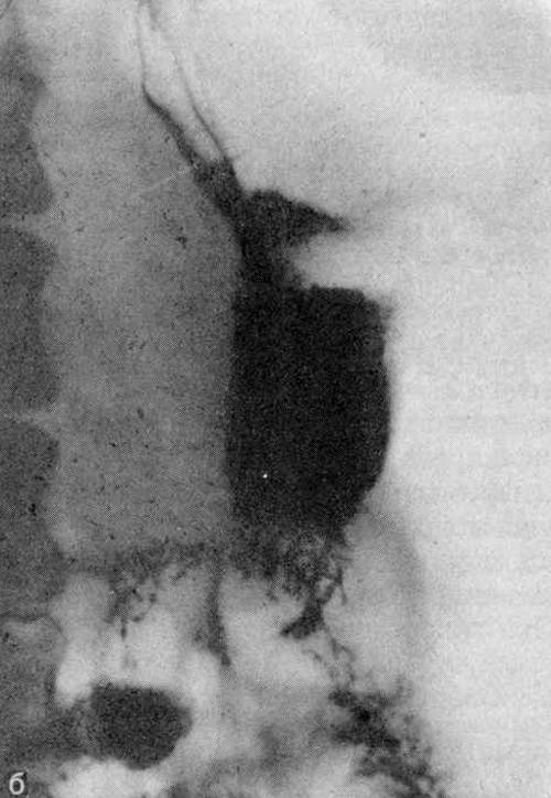 Рентгенограммы желудка больной 27 лет (б)