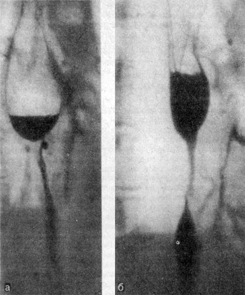 Рентгенограммы пищевода больной 47 лет