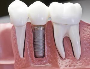 Какие существуют противопоказания для имплантации зубов