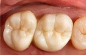 Установление коронки на зуб