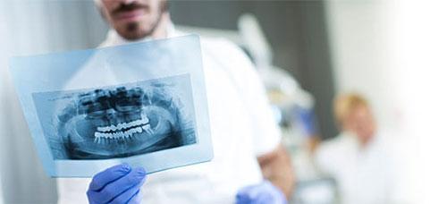 Принцип работы дентальных рентгенов