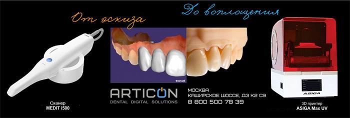 Оборудование для зубных техников «Артикон»: преимущества сотрудничества